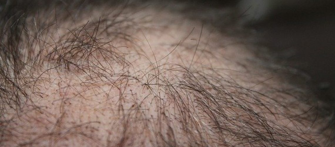 טיפול prp לשיער מחיר